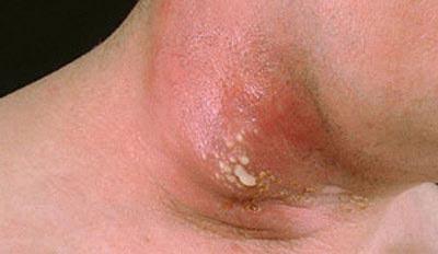 بیماری کورک چیست و چه علائمی دارد