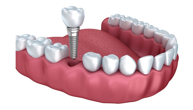ایمپلنت دندان چیست و چه کاربردی دارد