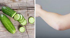 مواد موثر خانگی برای رفع سیاهی زانو و آرنج