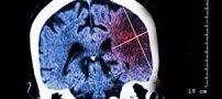 پیشگیری های موثر در بروز سکته مغزی