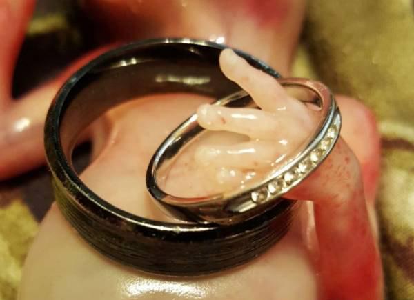 ماجرای دلخراش سقط جنین 14 هفته ای (عکس)