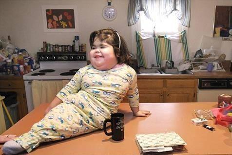 تولد عجیب یک نوزاد شبیه به پری دریایی (عکس)