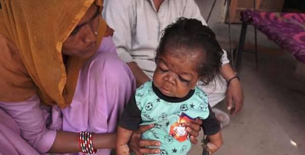 مردی هندی با قد و قواره نوزاد چند ماهه (عکس)