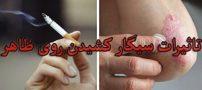تاثیرات مخرب سیگار بر روی زیبایی