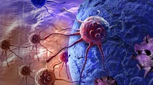 جدیدترین روش تشخیص سرطان رحم