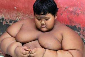 کاهش وزن عجیب چاق ترین پسر دنیا (عکس)