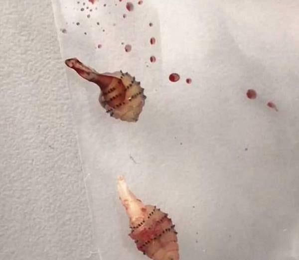 خارج شدن کرم های وحشتناک از بدن این دختر جوان (عکس)