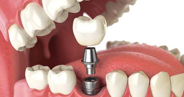 فیلم واقعی جراحی ایمپلنت و 7 نکته درباره کاشت دندان