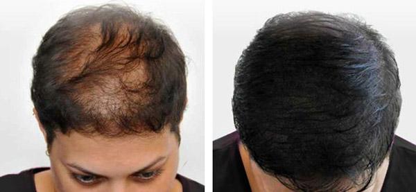 کاشت مو به روش SUT در کلینیک پوست و مو و زیبایی رز