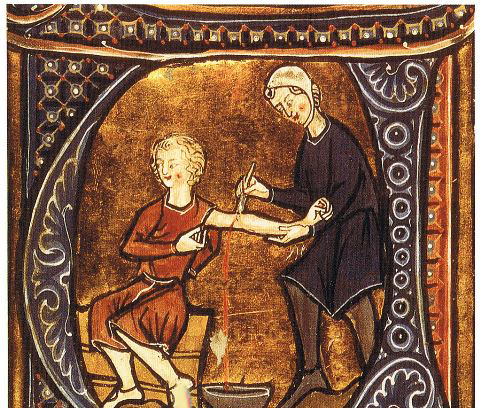 درمان های غیر قابل باور در قرون وسطی (عکس)