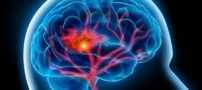 پیشگیری از سکته مغزی اما چگونه