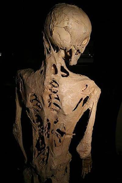 با عجیب ترین بیماری های قرن آشنا شوید (عکس)