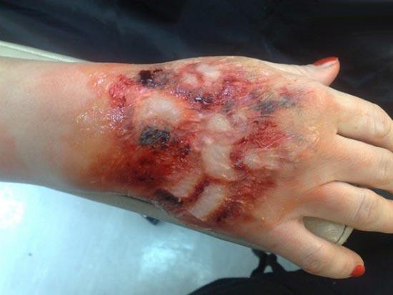 بدترین دردهایی که انسان ها تجربه می کنند! + عکس {hendevaneh.com}{سایتهندوانه}بدترین دردهایی که انسان ها تجربه می کنند! + عکس - 155399720965567 irannaz com - بدترین دردهایی که انسان ها تجربه می کنند! + عکس