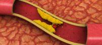 پیشگیری از گرفتگی عروق با این سه ماده غذایی