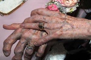 ازدواج رسمی دو همجنسگرای 90 ساله (عکس)