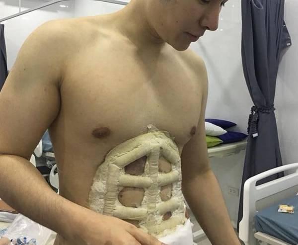 جراحی عجیب سیکس پک کردن شکم در تایلند (عکس)