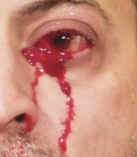 از چشم های این مرد بجای اشک خون می آید (عکس)