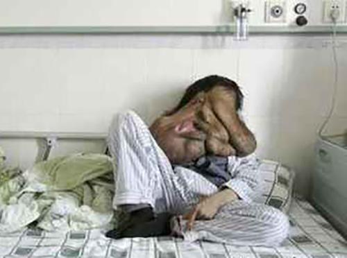 زشت ترین مرد دنیا را ببینید (عکس)