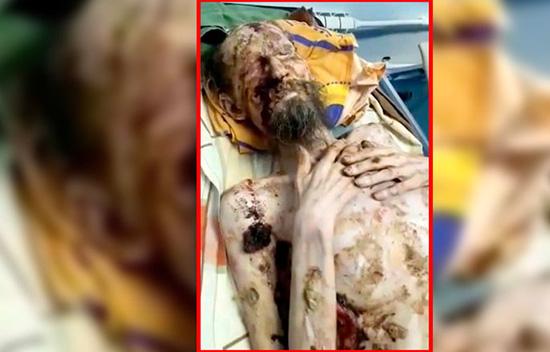 عکس وحشتناک مردی که توسط خرس مومیایی شد