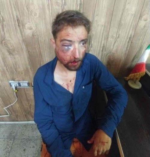جزئیات حمله به فیلیپ توریست آلمانی و دستگیری سارقان (عکس)