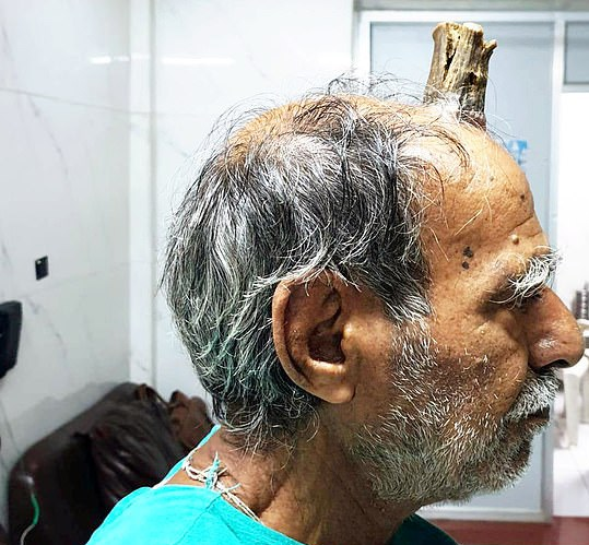 مردی که روی سرش شاخ دارد!