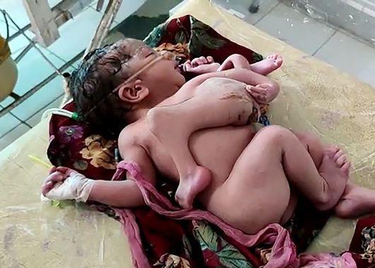 تولد نوزاد دختر با ۴ پا و ۳ دست (عكس)
