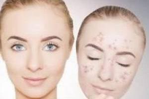 درمان لک صورت با این ماسک جادویی
