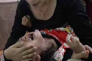 دختر بچه زیبا در هنگام ختنه شدن جان داد