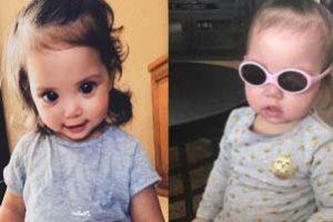 بیماری عجیب این دختر باعث زیبایی چشمانش شد (عکس)