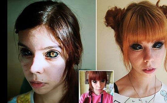 دختر مدل زیبا بخاطر تاتوی چشم نابینا شد (عکس)