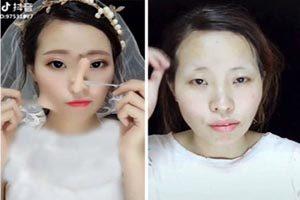کوچک کردن بینی با موم کریستال بدون جراحی ( عکس )
