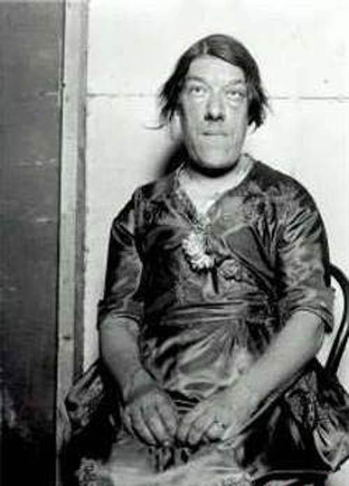 سرنوشت عجیب زشت ترین زن جهان (عکس)