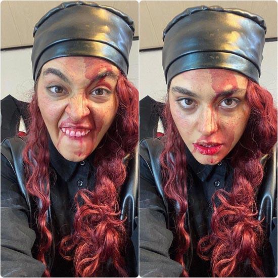 صورت خونین ریحانه پارسا و موهای عجیبش + عکس
