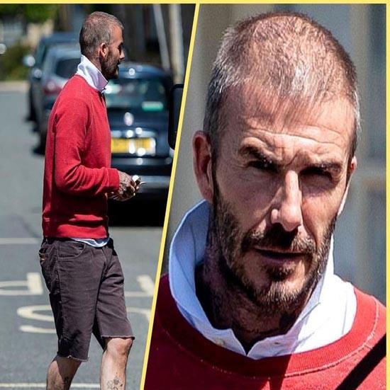 تغییر ظاهر و کچل شدن دیوید بکام با ریزش شدید مو (عکس)