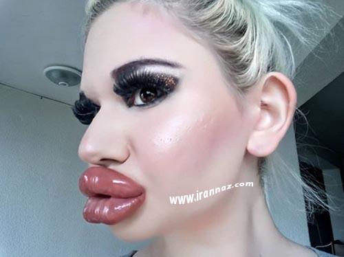 این دختر بزرگترین لب های دنیا را دارد (عکس)