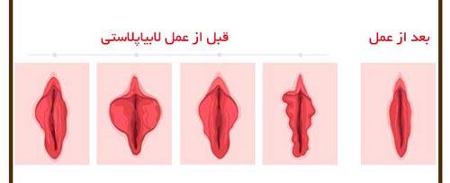 انواع عمل زیبایی واژن (آلت تناسلی زنان) + عکس