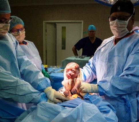 زنی که خودش نوزادش را از رحمش خارج کرد ( عکس )