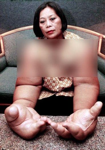 اندام عجیب زن تایلندی که در گینس ثبت شد (عکس)