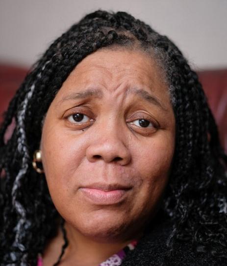 شیمی درمانی این زن سیاه پوست را سفید پوست کرد (عکس)