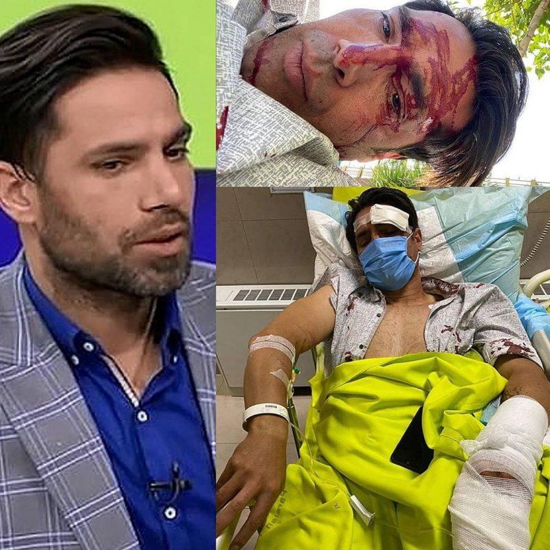 آخرین وضع امیرحسین صادقی بعد از قطع انگشت در تصادف ( فیلم و عکس)
