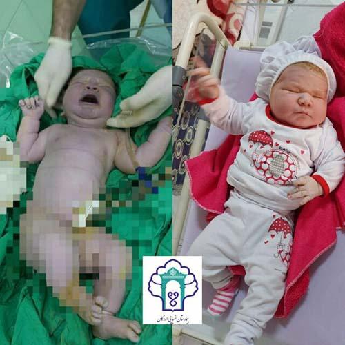تولد سنگین ترین نوزاد ایران ( عکس )