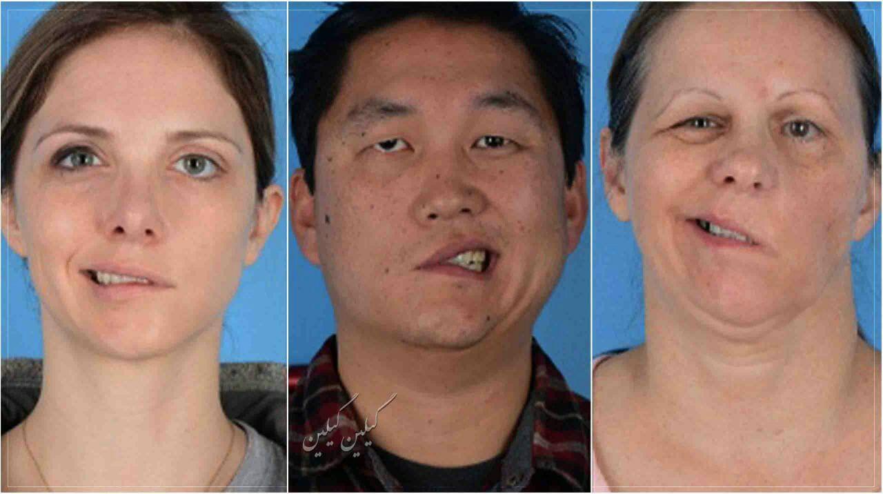 4 نفر از کسانی که واکسن کرونا زدند فلج صورت شدند ( عکس )