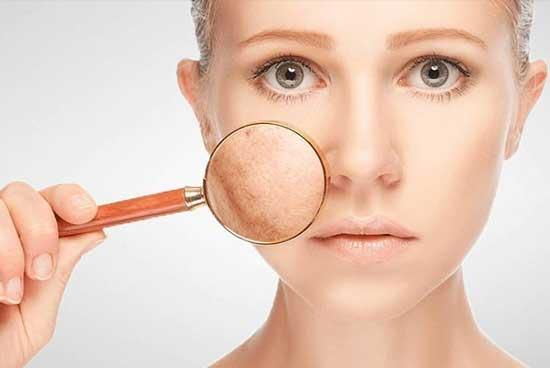مواد خوراکی معجزه آسا و موثر بر اختلالات پوستی + عکس