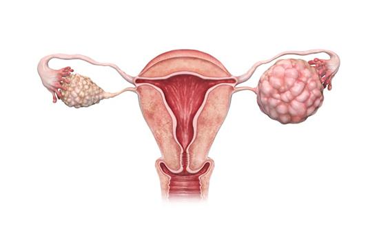 همه چیز درباره سرطان تخمدان،کشنده ترین سرطان زنان!