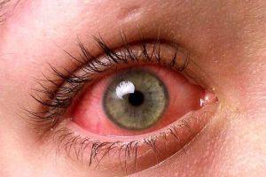 قرمزی چشم را چگونه درمان کنیم | دلایل قرمزی چشم
