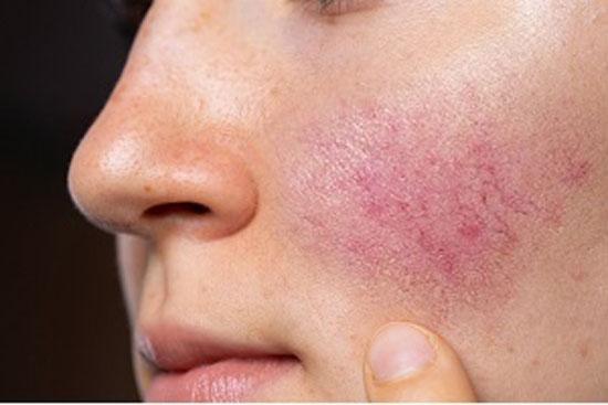 همه چیز درباره بیماری پوستی روزاسه