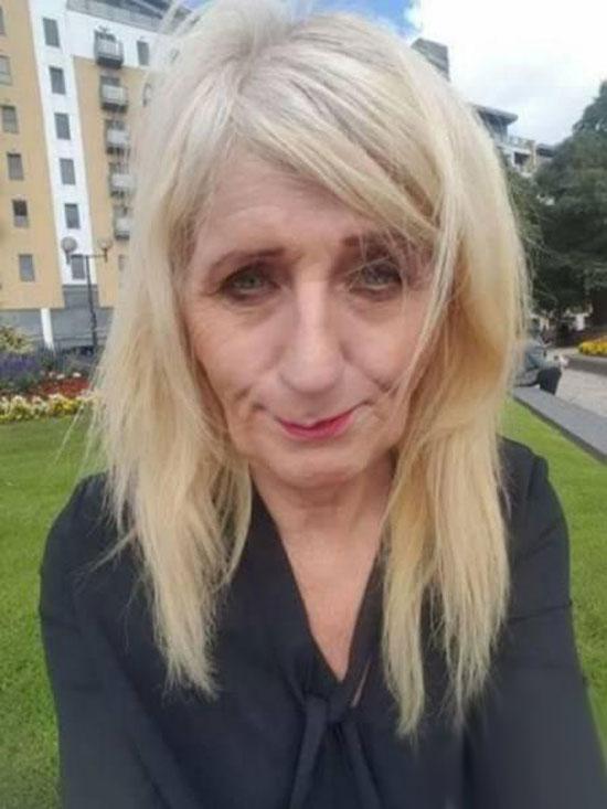 وقتی با عمل جراحی زیبایی از 85 سالگی به 40سالگی میرسی + عکس
