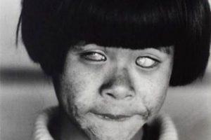 چشمان این دختر به شکل زامبی است + عکس