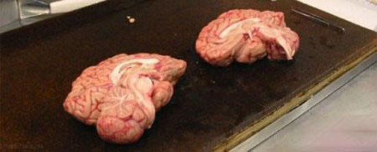 بانکی که در هاروارد از مغز انسان نگهداری میکند + عکس