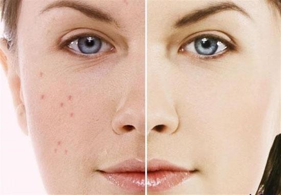 شفافیت پوست با ماسک سیب خانگی